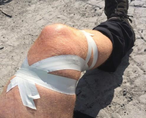Et stk. optapet knæ